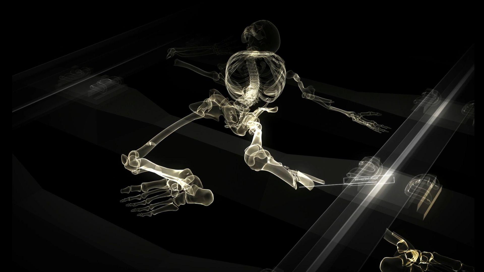 X-Ray body